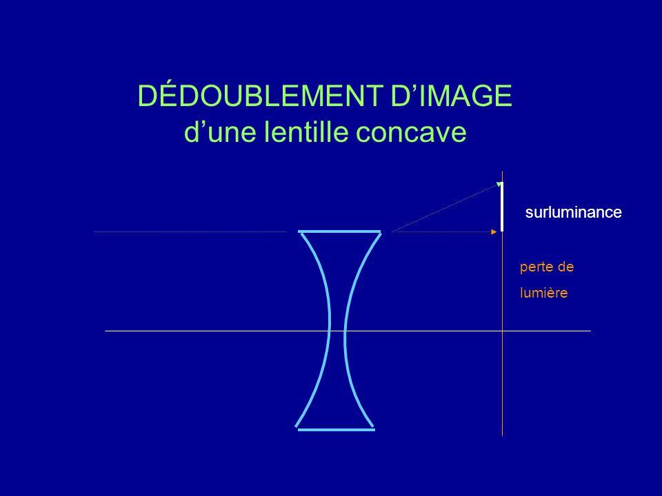 DÉDOUBLEMENT D'IMAGE d'une lentille concave perte de lumière surluminance