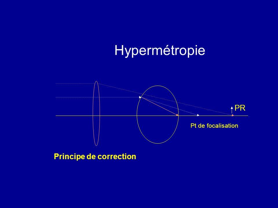 Hypermétropie PR Pt de focalisation Principe de correction