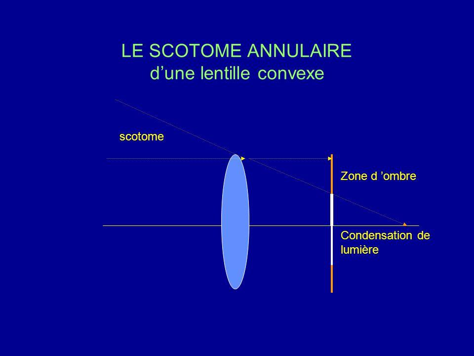 LE SCOTOME ANNULAIRE d'une lentille convexe Zone d 'ombre scotome Condensation de lumière