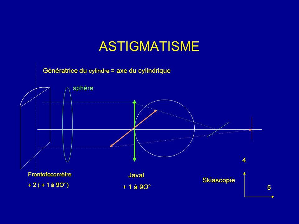 ASTIGMATISME Génératrice du cylindre = axe du cylindrique sphère Frontofocomètre + 2 ( + 1 à 9O°) Javal + 1 à 9O° Skiascopie 5 4