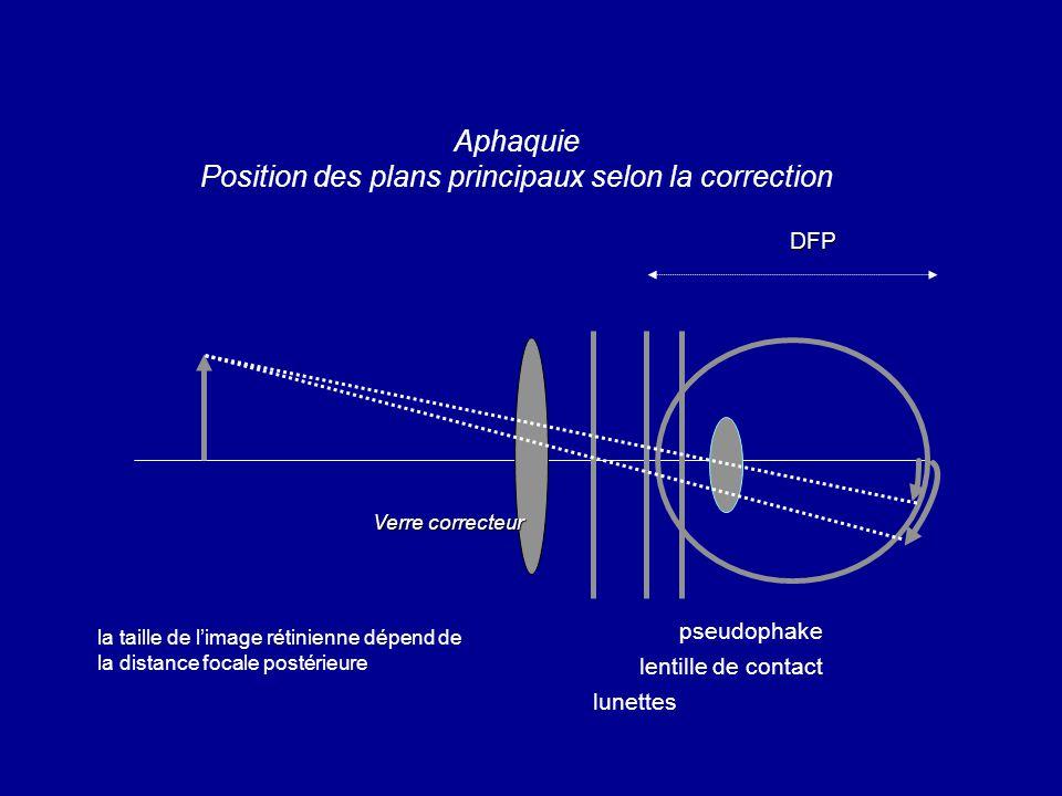 DFP Aphaquie Position des plans principaux selon la correction DFP la taille de l'image rétinienne dépend de la distance focale postérieure Verre correcteur pseudophake lentille de contact lunettes
