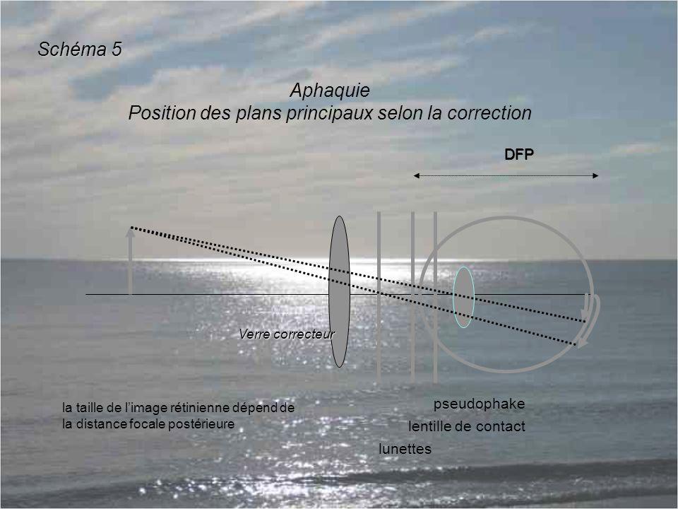 DFP Aphaquie Position des plans principaux selon la correction DFP la taille de l'image rétinienne dépend de la distance focale postérieure Schéma 5 Verre correcteur pseudophake lentille de contact lunettes