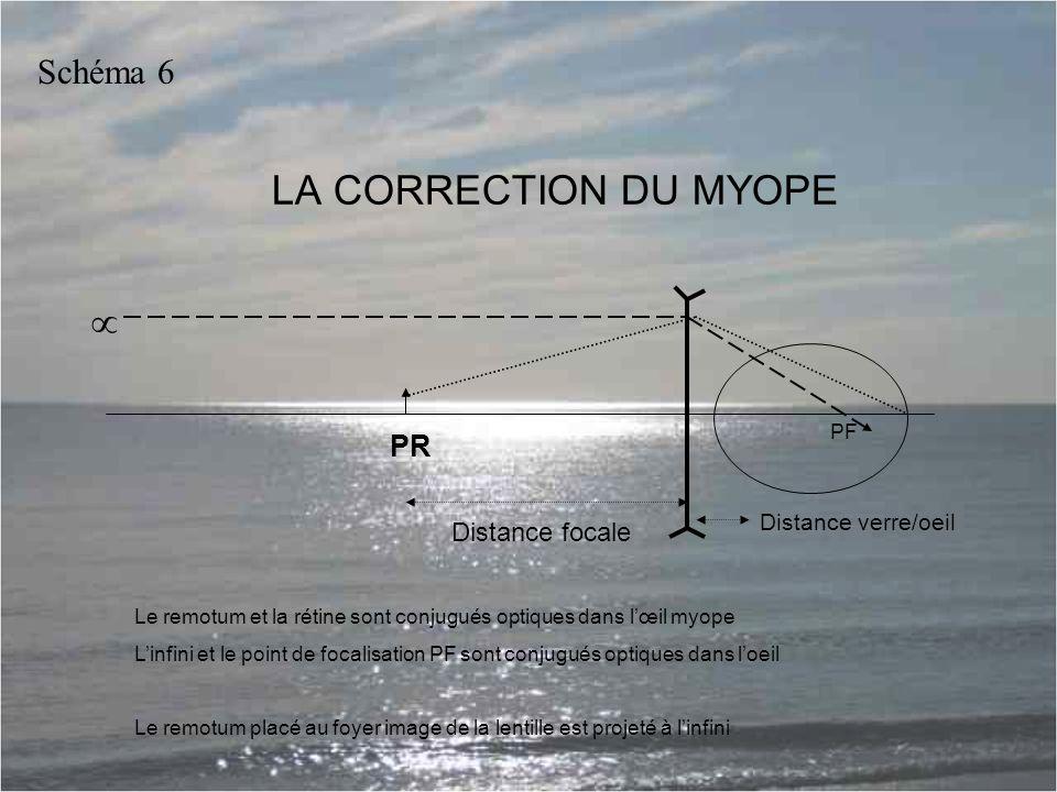 LA CORRECTION DU MYOPE Le remotum et la rétine sont conjugués optiques dans l'œil myope L'infini et le point de focalisation PF sont conjugués optiques dans l'oeil Le remotum placé au foyer image de la lentille est projeté à l'infini PR Distance focale Distance verre/oeil Schéma 6 PF 