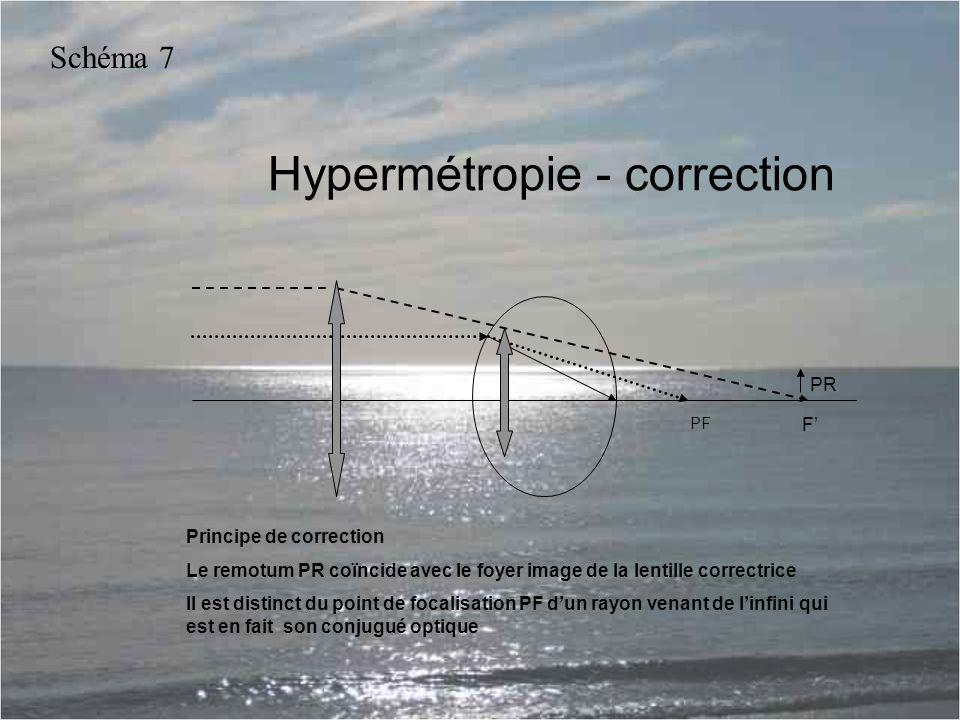 Hypermétropie - correction PR PF Principe de correction Le remotum PR coïncide avec le foyer image de la lentille correctrice Il est distinct du point de focalisation PF d'un rayon venant de l'infini qui est en fait son conjugué optique Schéma 7 F'