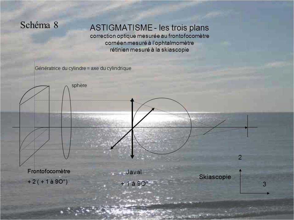 ASTIGMATISME - les trois plans correction optique mesurée au frontofocomètre cornéen mesuré à l'ophtalmomètre rétinien mesuré à la skiascopie Génératrice du cylindre = axe du cylindrique sphère Frontofocomètre + 2 ( + 1 à 9O°) Javal + 1 à 9O° Skiascopie 3 Frontofocomètre + 2 ( + 1 à 9O°) Skiascopie 2 Schéma 8