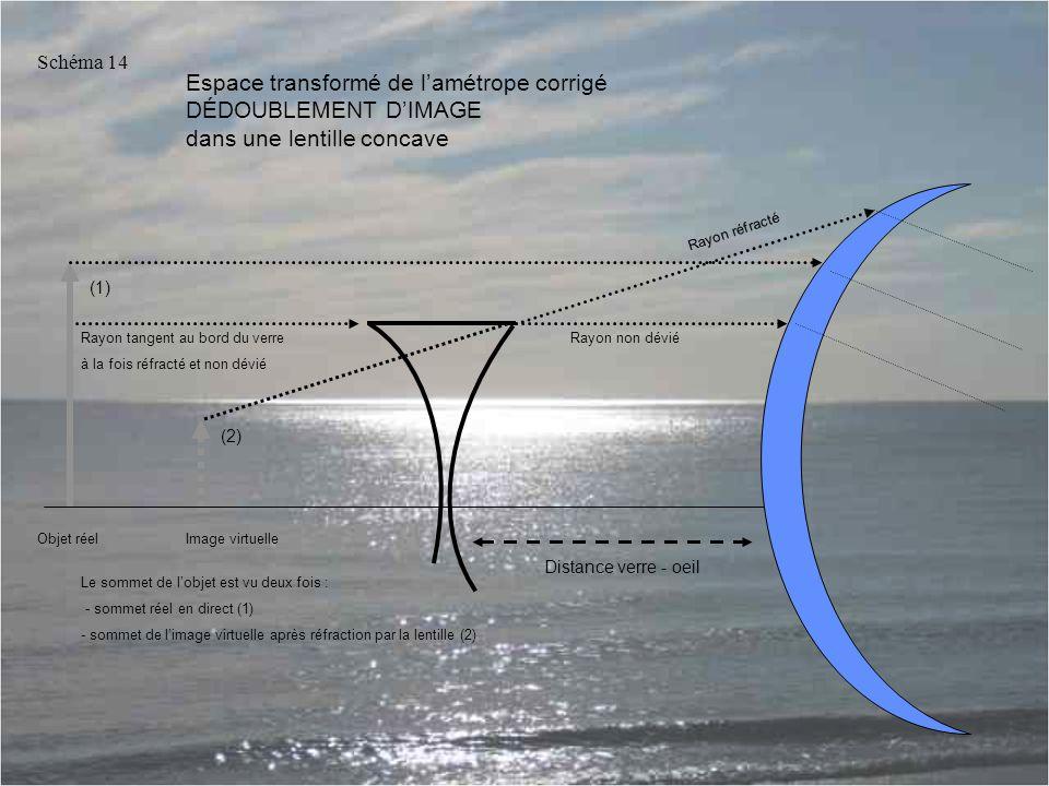 Espace transformé de l'amétrope corrigé DÉDOUBLEMENT D'IMAGE dans une lentille concave Rayon tangent au bord du verre à la fois réfracté et non dévié Rayon réfracté Rayon non dévié Schéma 14 Objet réelImage virtuelle Le sommet de l'objet est vu deux fois : - sommet réel en direct (1) - sommet de l'image virtuelle après réfraction par la lentille (2) Distance verre - oeil (1) (2)