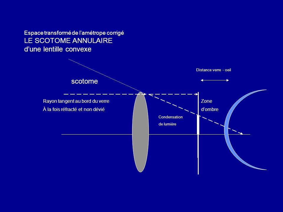 Espace transformé de l'amétrope corrigé LE SCOTOME ANNULAIRE d'une lentille convexe Zone d'ombre scotome Condensation de lumière Rayon tangent au bord du verre À la fois réfracté et non dévié Distance verre - oeil