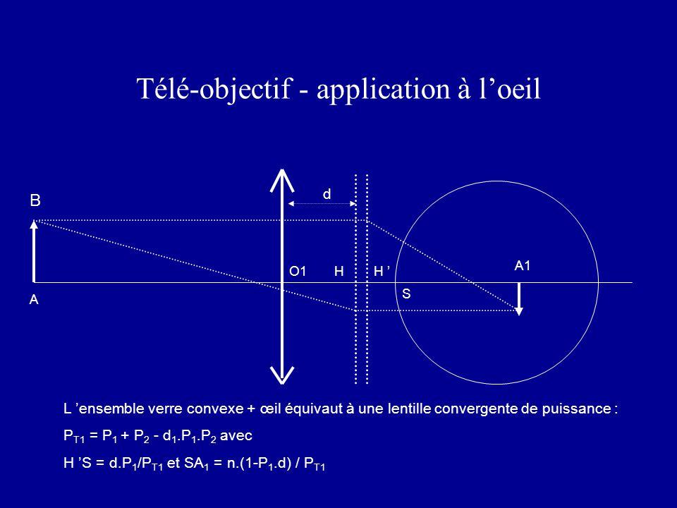 Télé-objectif - application à l'oeil L 'ensemble verre convexe + œil équivaut à une lentille convergente de puissance : P T1 = P 1 + P 2 - d 1.P 1.P 2 avec H 'S = d.P 1 /P T1 et SA 1 = n.(1-P 1.d) / P T1 A1 H ' S A O1 d B H