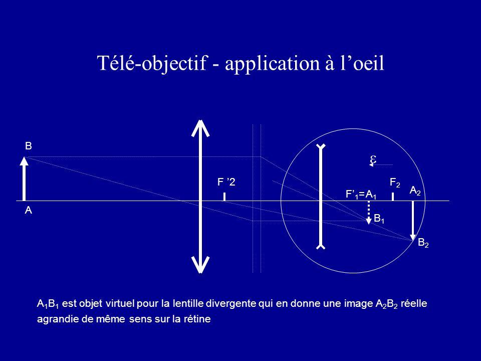 Télé-objectif - application à l'oeil A 1 B 1 est objet virtuel pour la lentille divergente qui en donne une image A 2 B 2 réelle agrandie de même sens sur la rétine F '2F2F2 F' 1 = A A2A2 B2B2 A1A1 B1B1  B