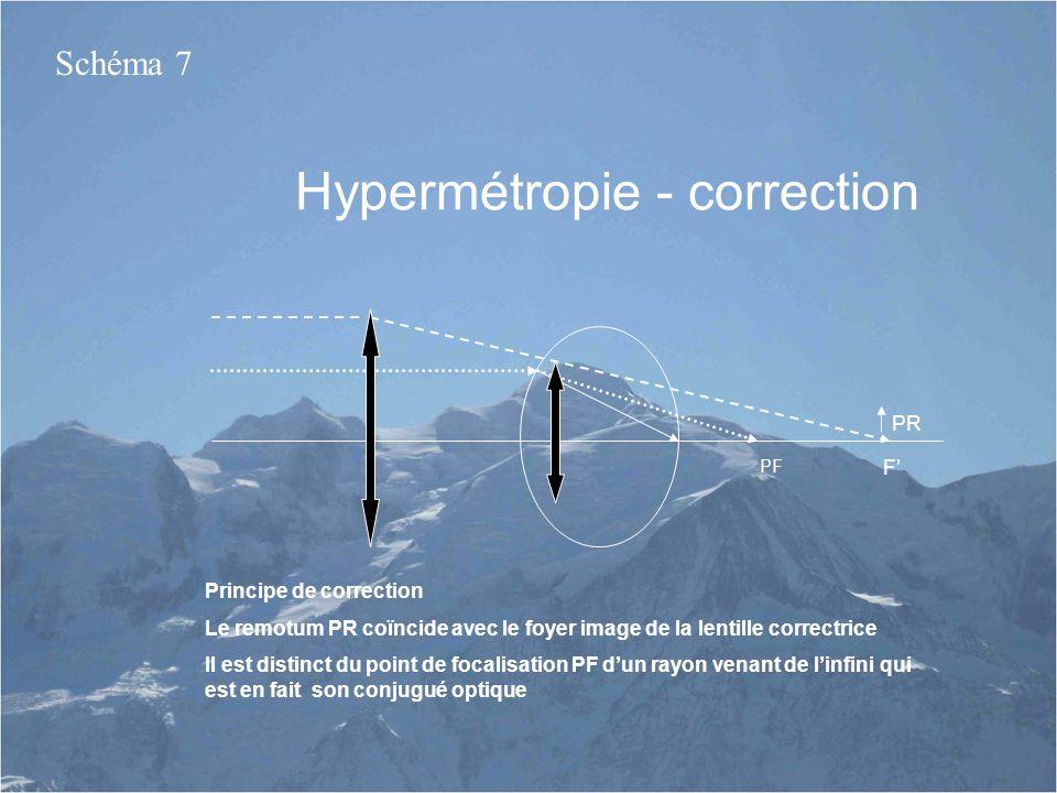 Hypermétropie - correction PR PF Principe de correction Le remotum PR coïncide avec le foyer image de la lentille correctrice Il est distinct du point