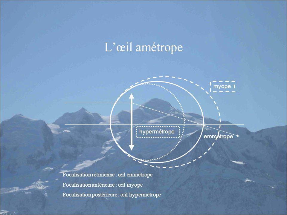 L'œil amétrope hypermétrope myope emmétrope Focalisation rétinienne : œil emmétrope Focalisation antérieure : œil myope Focalisation postérieure : œil