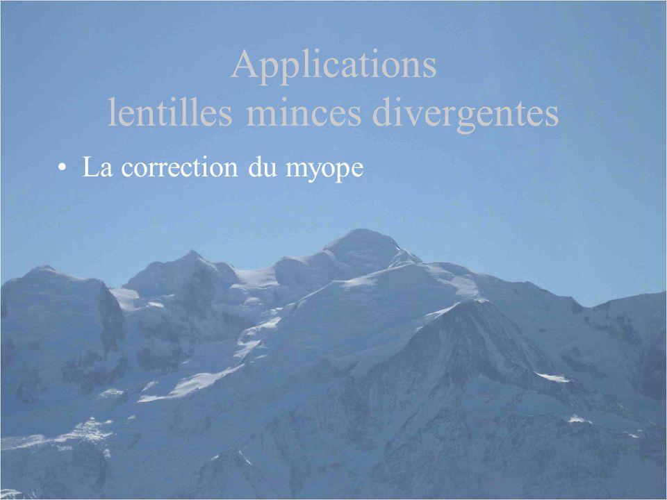 Applications lentilles minces divergentes La correction du myope