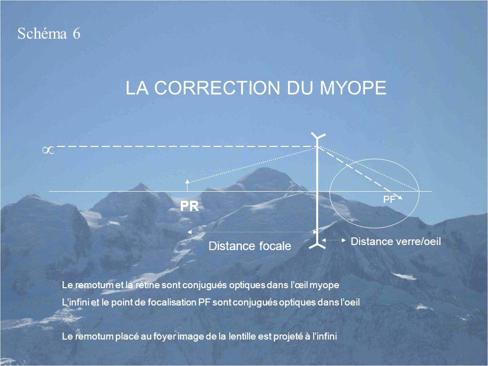 LA CORRECTION DU MYOPE Le remotum et la rétine sont conjugués optiques dans l'œil myope L'infini et le point de focalisation PF sont conjugués optique