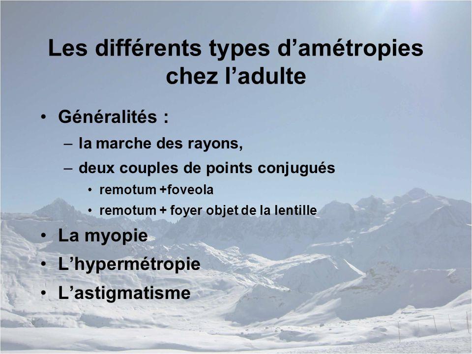 Les différents types d'amétropies chez l'adulte Généralités : –la marche des rayons, –deux couples de points conjugués remotum +foveola remotum + foyer objet de la lentille La myopie L'hypermétropie L'astigmatisme