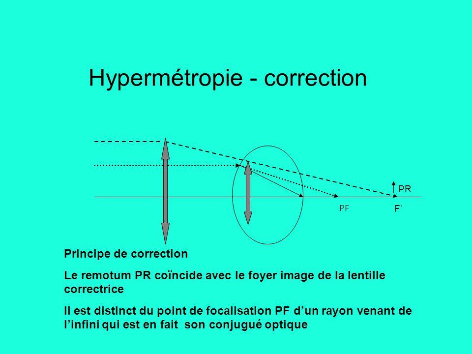 Hypermétropie - correction PR PF Principe de correction Le remotum PR coïncide avec le foyer image de la lentille correctrice Il est distinct du point de focalisation PF d'un rayon venant de l'infini qui est en fait son conjugué optique F'