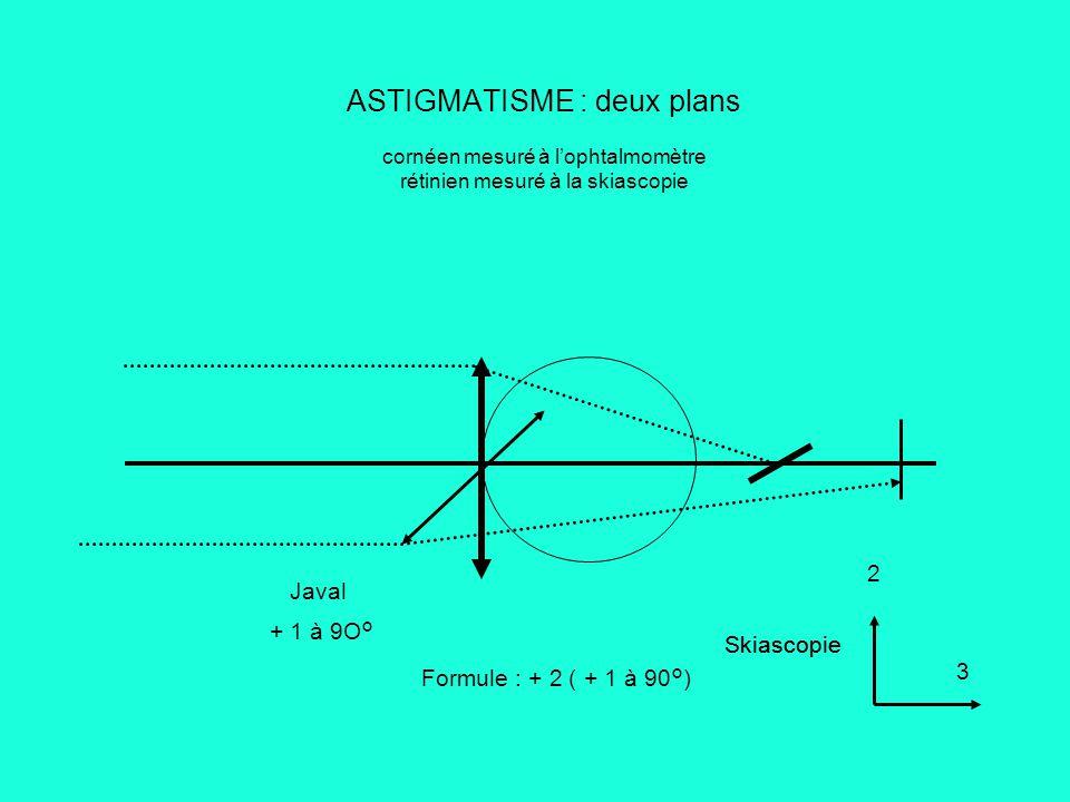 ASTIGMATISME : deux plans cornéen mesuré à l'ophtalmomètre rétinien mesuré à la skiascopie Formule : + 2 ( + 1 à 90°) Javal + 1 à 9O° Skiascopie 3 2