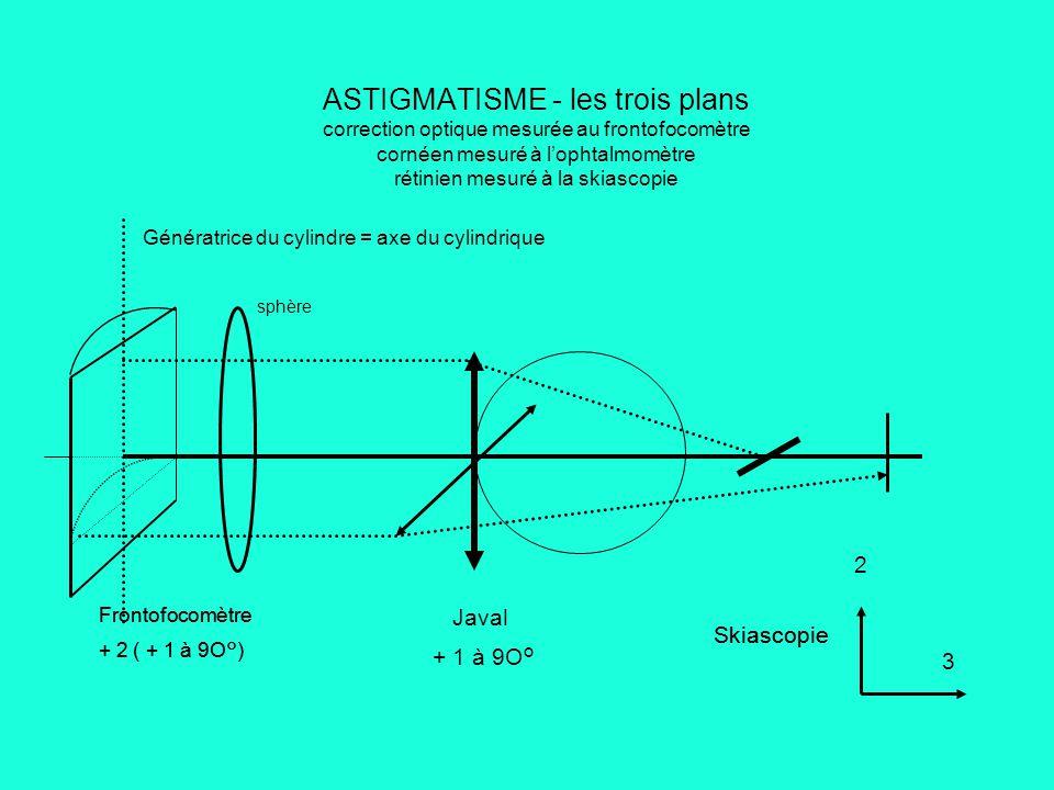 ASTIGMATISME - les trois plans correction optique mesurée au frontofocomètre cornéen mesuré à l'ophtalmomètre rétinien mesuré à la skiascopie Génératrice du cylindre = axe du cylindrique sphère Frontofocomètre + 2 ( + 1 à 9O°) Javal + 1 à 9O° Skiascopie 3 Frontofocomètre + 2 ( + 1 à 9O°) Skiascopie 2