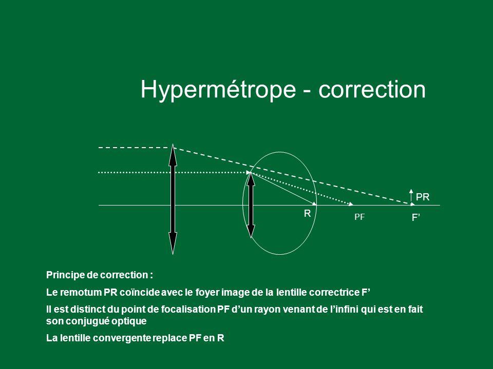 Hypermétrope - correction PR PF Principe de correction : Le remotum PR coïncide avec le foyer image de la lentille correctrice F' Il est distinct du point de focalisation PF d'un rayon venant de l'infini qui est en fait son conjugué optique La lentille convergente replace PF en R F' R