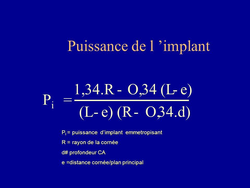 Puissance de l 'implant PiPi = 1,34.R- O,34 (L-e) (L-e) (R- O,34.d) P i = puissance d'implant emmetropisant R = rayon de la cornée d# profondeur CA e =distance cornée/plan principal