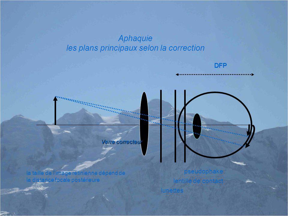 DFP Aphaquie les plans principaux selon la correction DFP la taille de l'image rétinienne dépend de la distance focale postérieure Verre correcteur pseudophake lentille de contact lunettes