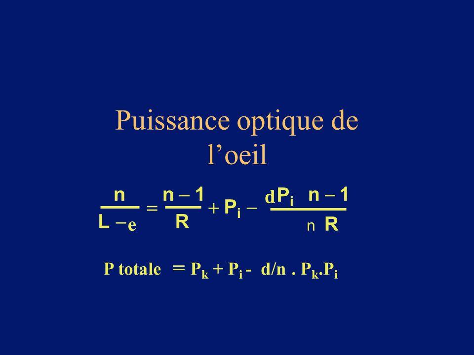 Puissance optique de l'oeil P totale = P k + P i - d/n. P k.P i n L  e  n  1 R  PiPi  d PiPi n  1 R n