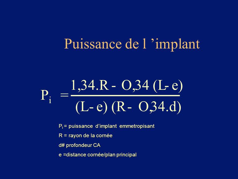 Puissance de l 'implant PiPi = 1,34.R- O,34 (L-e) (L-e) (R- O,34.d) P i = puissance d'implant emmetropisant R = rayon de la cornée d# profondeur CA e