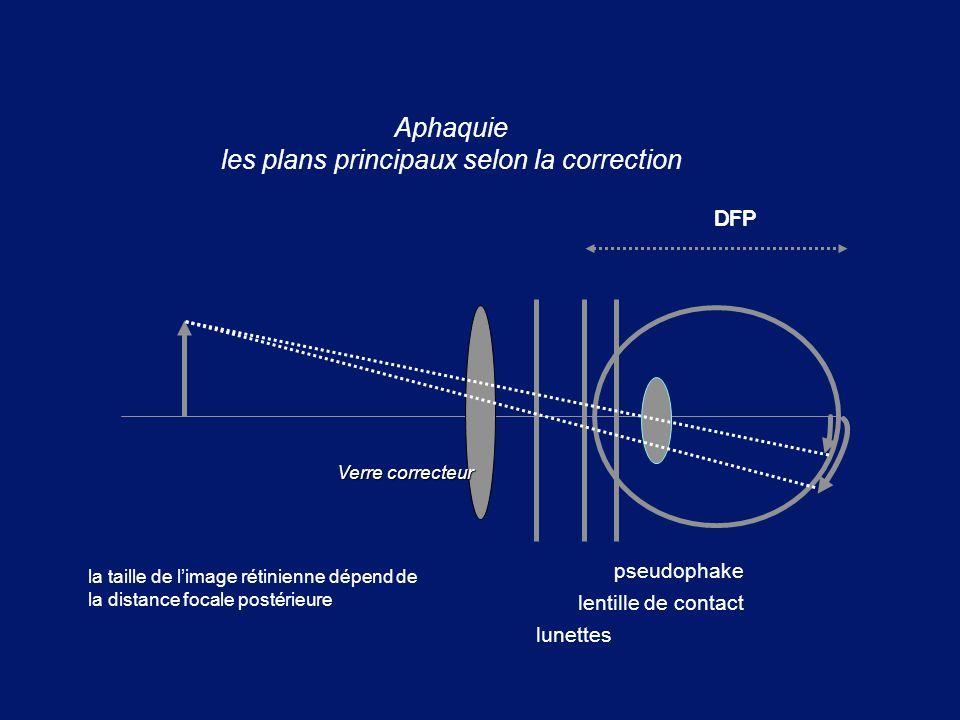 DFP Aphaquie les plans principaux selon la correction DFP la taille de l'image rétinienne dépend de la distance focale postérieure Verre correcteur ps
