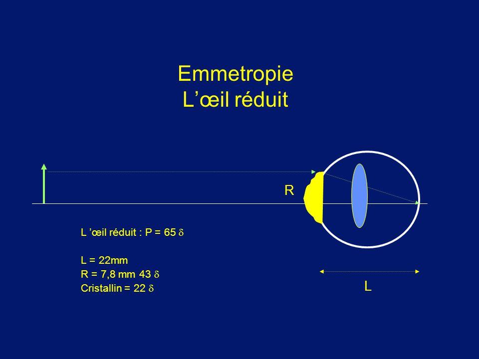 Emmetropie L'œil réduit L 'œil réduit : P = 65  L = 22mm R = 7,8 mm 43  Cristallin = 22  L R