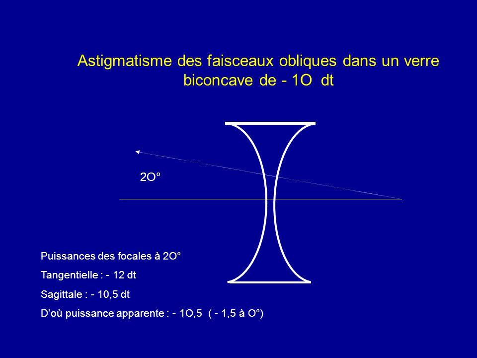Astigmatisme des faisceaux obliques dans un verre biconcave de - 1O dt Puissances des focales à 2O° Tangentielle : - 12 dt Sagittale : - 10,5 dt D'où
