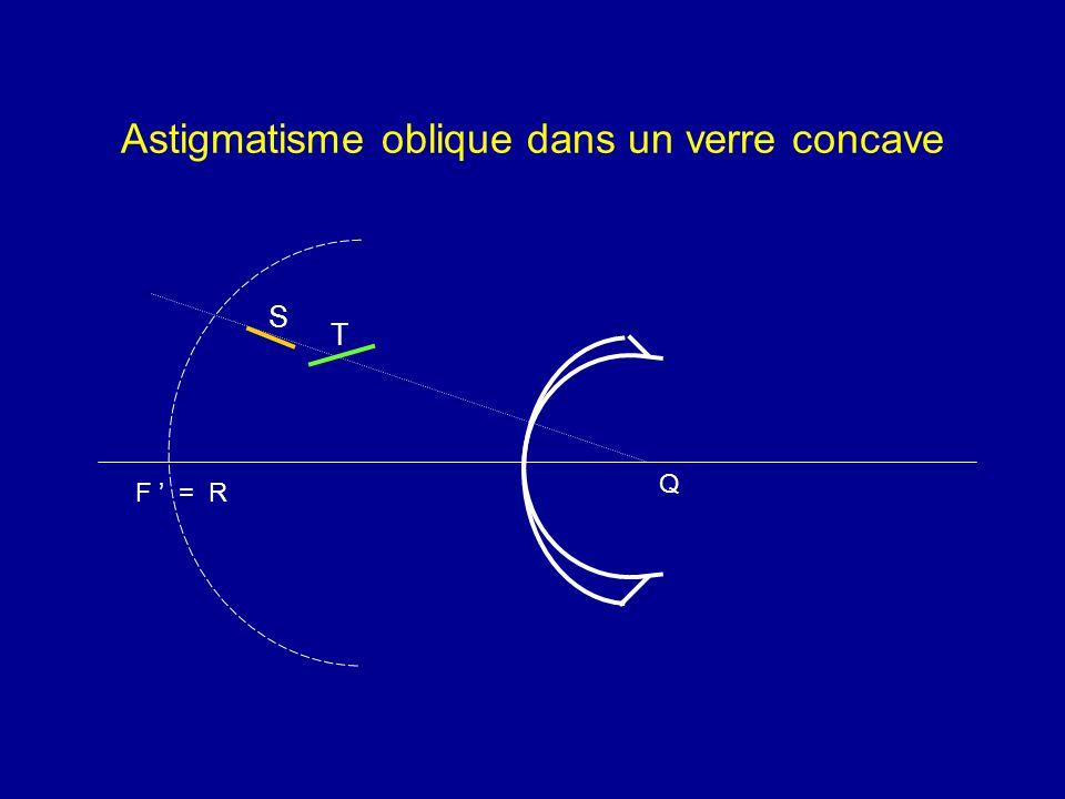 Astigmatisme oblique dans un verre concave Q F ' = R S T