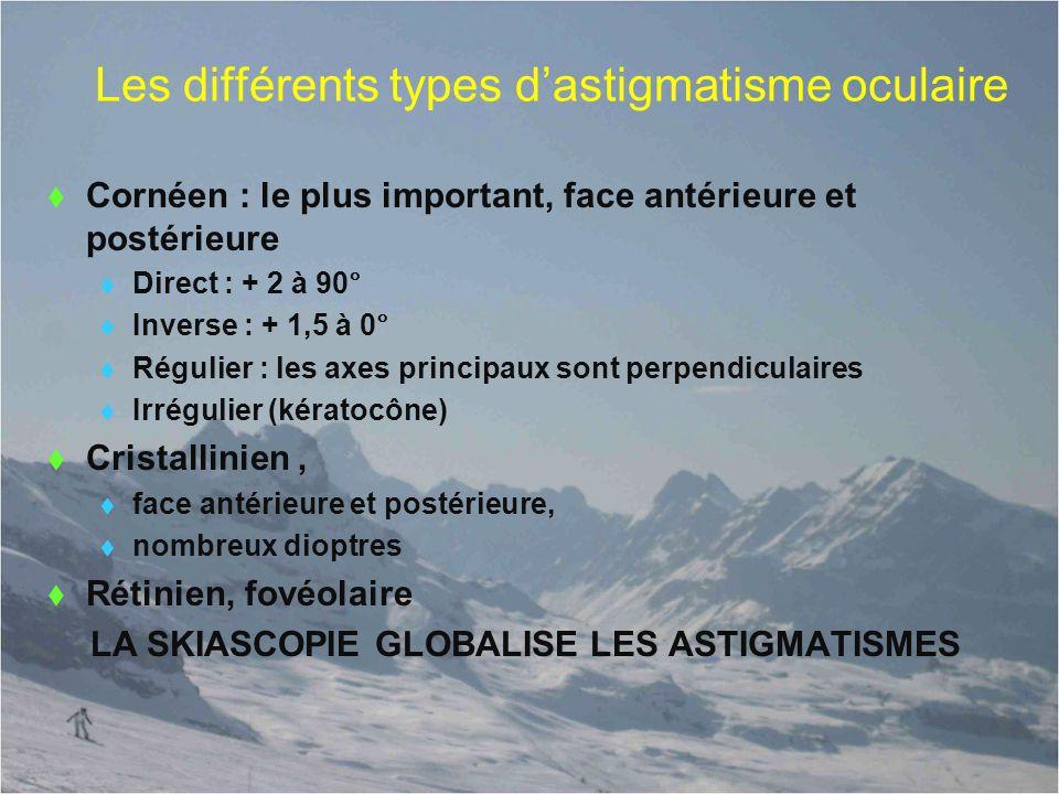 Les différents types d'astigmatisme oculaire  Cornéen : le plus important, face antérieure et postérieure  Direct : + 2 à 90°  Inverse : + 1,5 à 0°