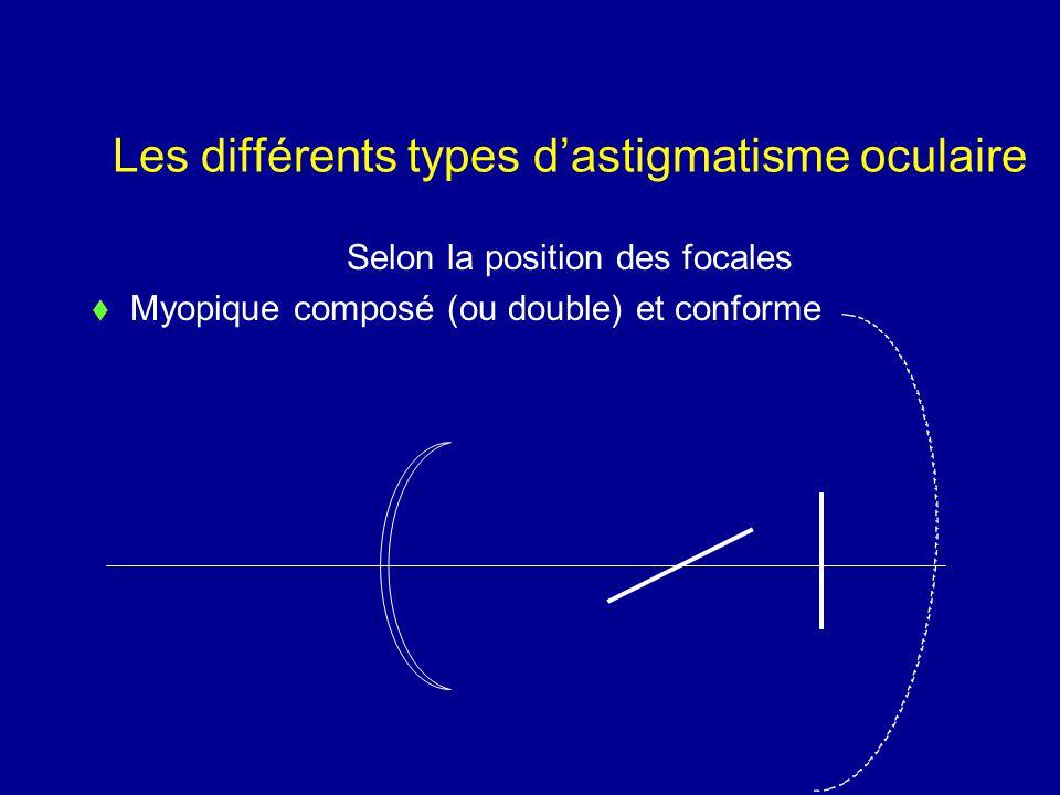 Les différents types d'astigmatisme oculaire Selon la position des focales  Myopique composé (ou double) et conforme
