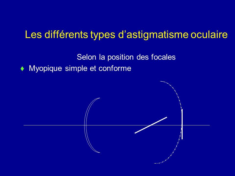 Les différents types d'astigmatisme oculaire Selon la position des focales  Myopique simple et conforme