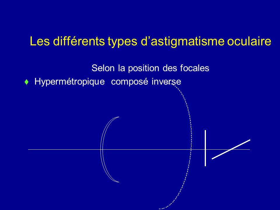 Les différents types d'astigmatisme oculaire Selon la position des focales  Hypermétropique composé inverse