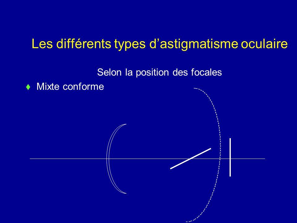 Les différents types d'astigmatisme oculaire Selon la position des focales  Mixte conforme