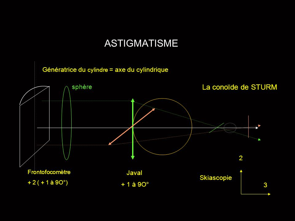 ASTIGMATISME Génératrice du cylindre = axe du cylindrique sphère Frontofocomètre + 2 ( + 1 à 9O°) Javal + 1 à 9O° Skiascopie 3 2 La conoïde de STURM