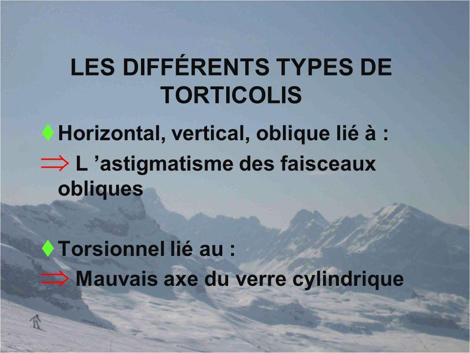 LES DIFFÉRENTS TYPES DE TORTICOLIS  Horizontal, vertical, oblique lié à :  L 'astigmatisme des faisceaux obliques  Torsionnel lié au :  Mauvais ax