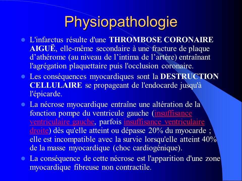 Physiopathologie L'infarctus résulte d'une THROMBOSE CORONAIRE AIGUË, elle-même secondaire à une fracture de plaque d'athérome (au niveau de l'intima