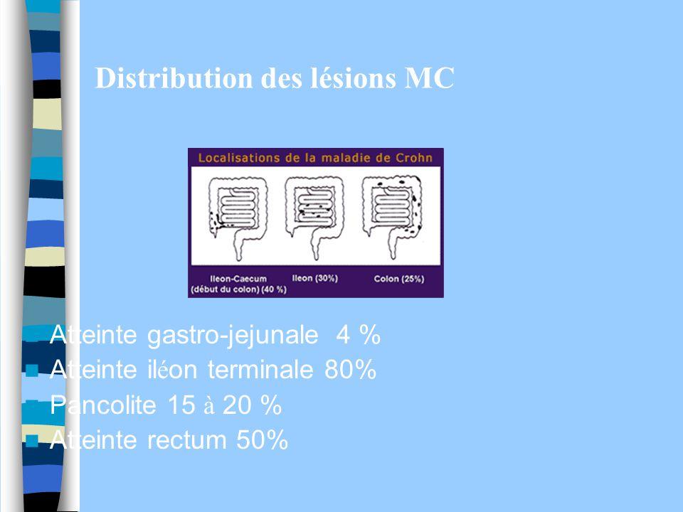 Distribution des lésions MC Atteinte gastro-jejunale 4 % Atteinte il é on terminale 80% Pancolite 15 à 20 % Atteinte rectum 50%