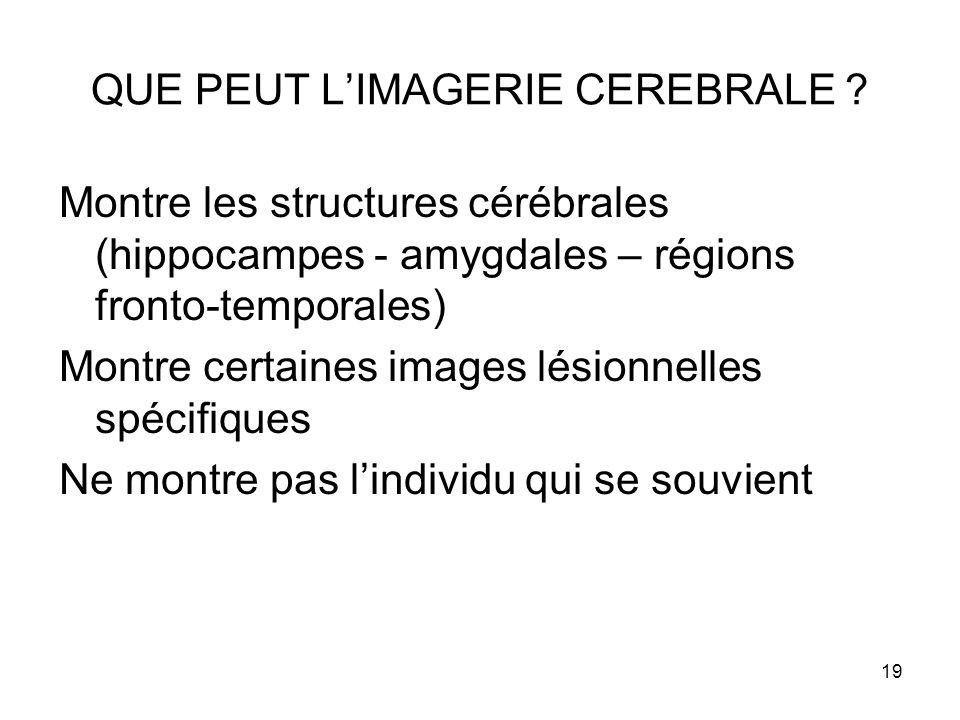 19 QUE PEUT L'IMAGERIE CEREBRALE ? Montre les structures cérébrales (hippocampes - amygdales – régions fronto-temporales) Montre certaines images lési