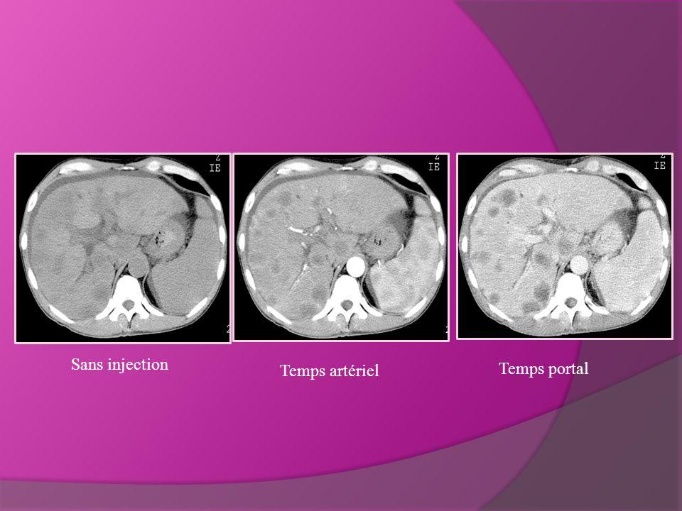Sans injection Temps artériel Temps portal