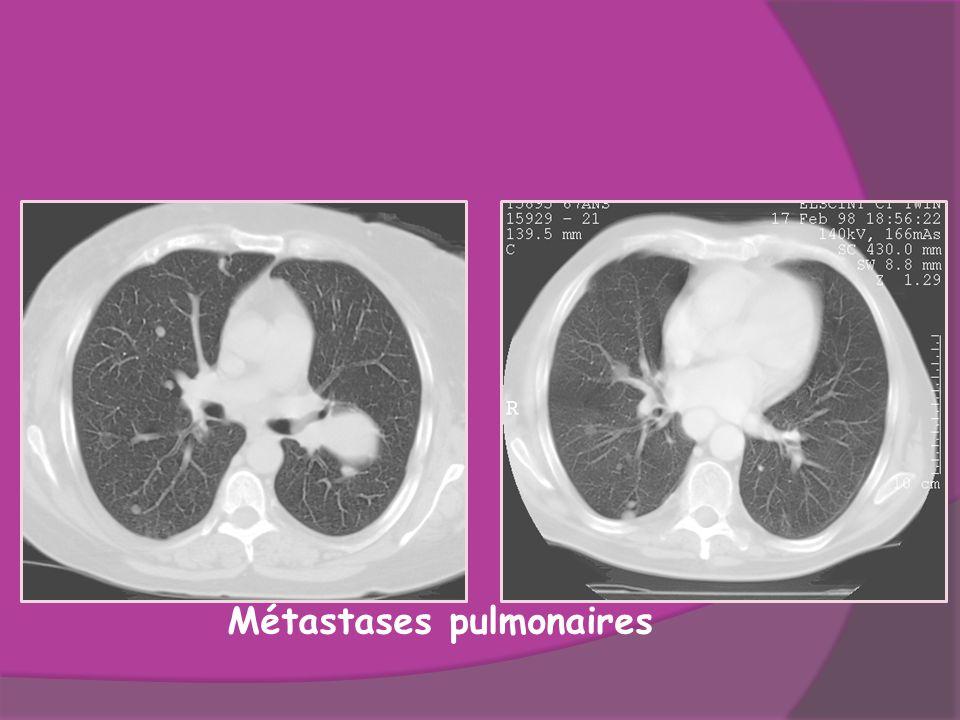 Métastases pulmonaires