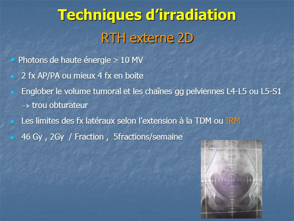 Techniques d'irradiation RTH externe 2D  Photons de haute énergie  10 MV 2 fx AP/PA ou mieux 4 fx en boite 2 fx AP/PA ou mieux 4 fx en boite Englobe