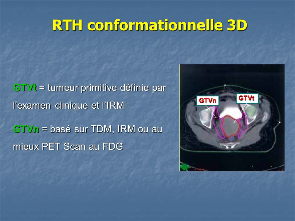 GTVt = tumeur primitive définie par l'examen clinique et l'IRM GTVn = basé sur TDM, IRM ou au mieux PET Scan au FDG RTH conformationnelle 3D RTH confo