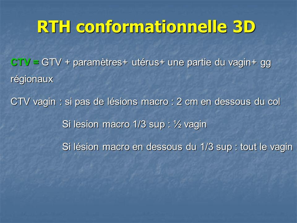 CTV = GTV + paramètres+ utérus+ une partie du vagin+ gg régionaux CTV vagin : si pas de lésions macro : 2 cm en dessous du col Si lesion macro 1/3 sup
