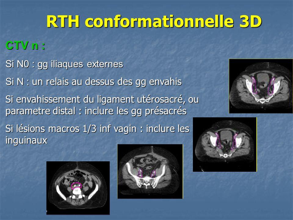 CTV n : Si N0 : gg iliaques externes Si N : un relais au dessus des gg envahis Si envahissement du ligament utérosacré, ou parametre distal : inclure