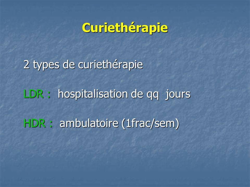 Curiethérapie 2 types de curiethérapie LDR : hospitalisation de qq jours HDR : ambulatoire (1frac/sem)