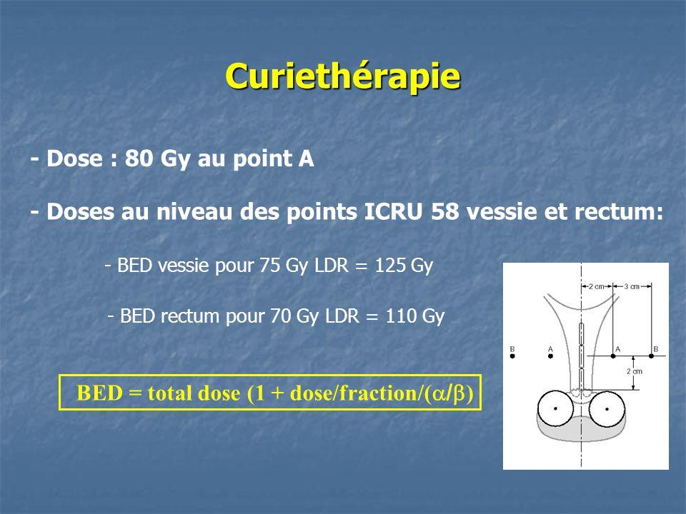 - Doses au niveau des points ICRU 58 vessie et rectum: - BED vessie pour 75 Gy LDR = 125 Gy - BED rectum pour 70 Gy LDR = 110 Gy Curiethérapie BED = t