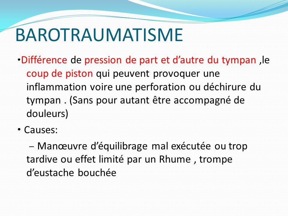 BAROTRAUMATISME Différence de pression de part et d'autre du tympan,le coup de piston qui peuvent provoquer une inflammation voire une perforation ou déchirure du tympan.