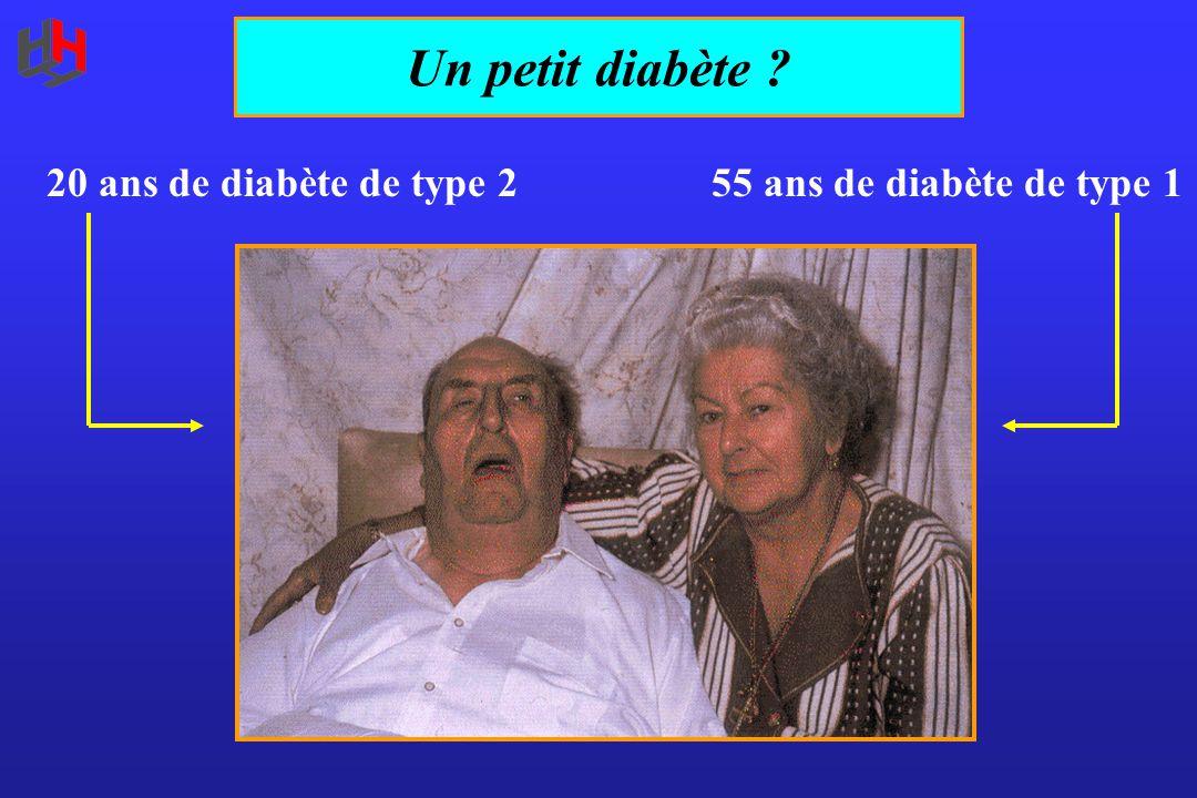 20 ans de diabète de type 255 ans de diabète de type 1 Un petit diabète ?